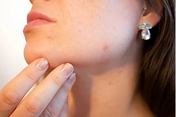 What causes acne and other skin problems?Acne as a sign of altered organs and illnesses